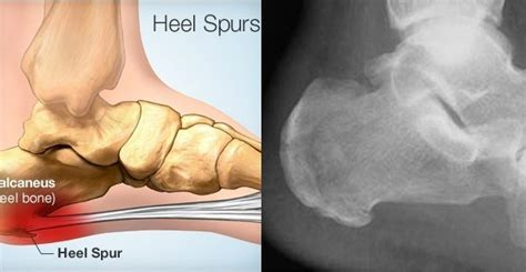Pain in Heel or Plantar Fasciitis: Here's How to Get Rid